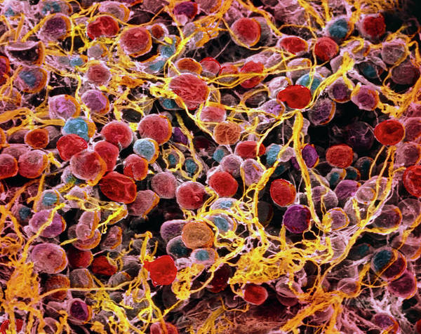 Wall Art - Photograph - Coloured Sem Of Adipose Tissue Showing Fat Cells by Prof. P. Motta/dept. Of Anatomy/university \la Sapienza\, Rome/science Photo Library
