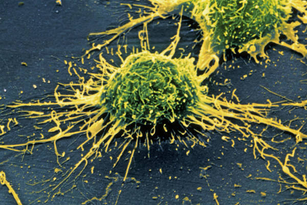 Nerve Cell Photograph - Coloured Sem Of Alzheimer's Disease Culture Cells by Simon Fraser/science Photo Library
