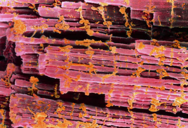 Voluntary Muscle Photograph - Coloured Sem Of Human Striated Muscle by Steve Gschmeissner/science Photo Library