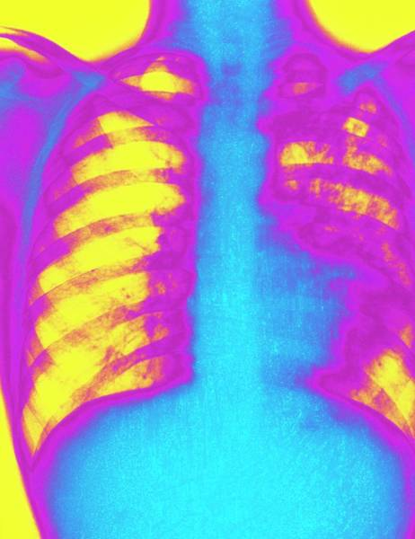 Wall Art - Photograph - Coloured X-ray Of Human Chest Showing Pulmonary Tb by Science Photo Library