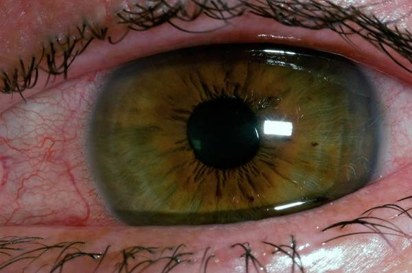 48 Wall Art - Photograph - Corneal Abrasion From Contact Lens by Dr P. Marazzi/science Photo Library