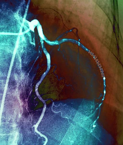 Radiological Photograph - Coronary Stent by Zephyr/science Photo Library