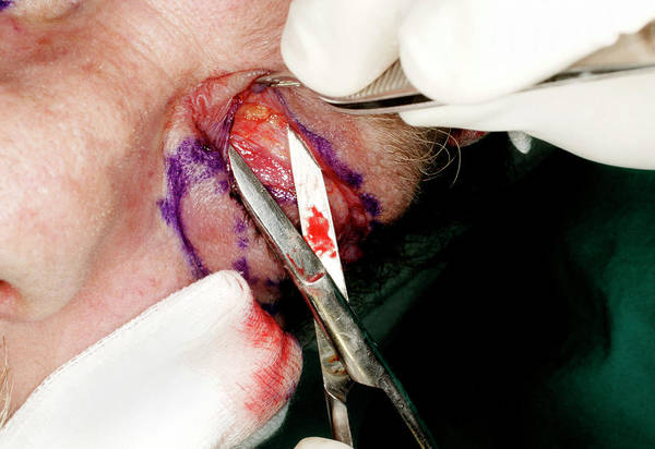 Fatty Tissue Photograph - Cosmetic Eyelid Surgery by Mauro Fermariello/science Photo Library
