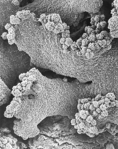 Orange Lichen Photograph - Crustose Lichen Xanthomendoza Fallax by Dennis Kunkel Microscopy/science Photo Library