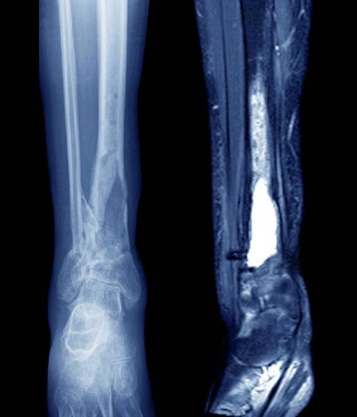 Resonance Wall Art - Photograph - Damaged Tibia by Zephyr/science Photo Library