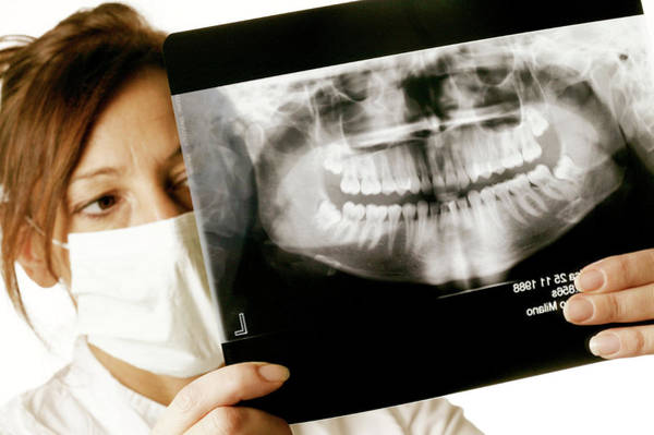 Radiograph Photograph - Dental X-ray by Mauro Fermariello/science Photo Library