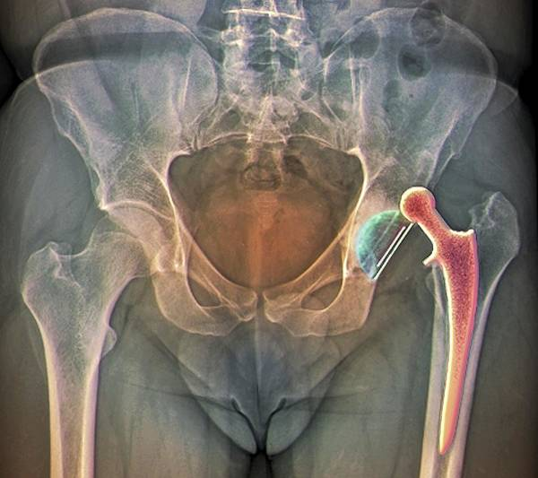 Radiological Photograph - Dislocated Hip Replacement by Zephyr/science Photo Library