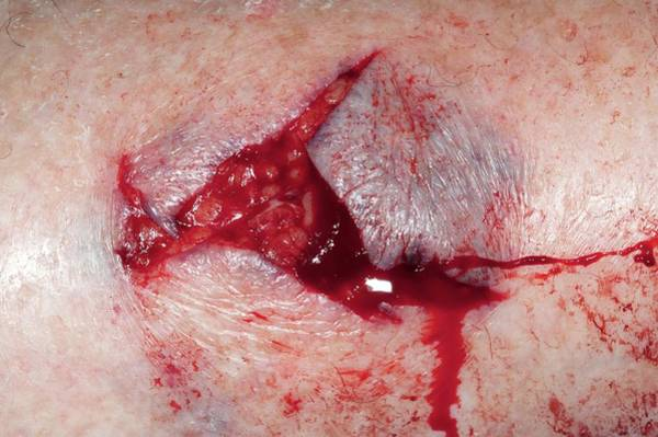 Dog Treat Photograph - Dog Bite On The Shin by Dr P. Marazzi/science Photo Library