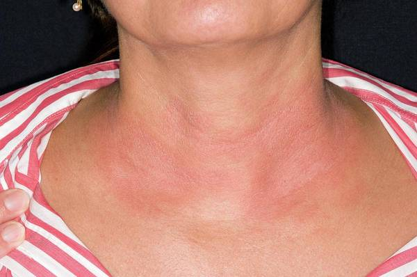 Scaling Photograph - Eczema On The Neck by Dr P. Marazzi/science Photo Library