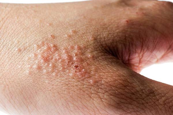 Patient Photograph - Eczema by Pan Xunbin/science Photo Library