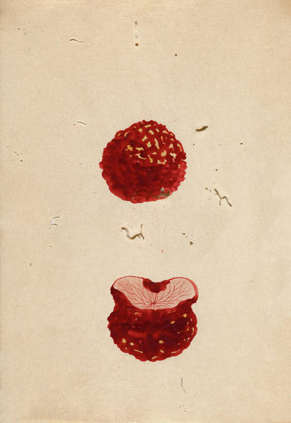 Carcinoma Wall Art - Photograph - Excised Breast Cancer by National Library Of Medicine