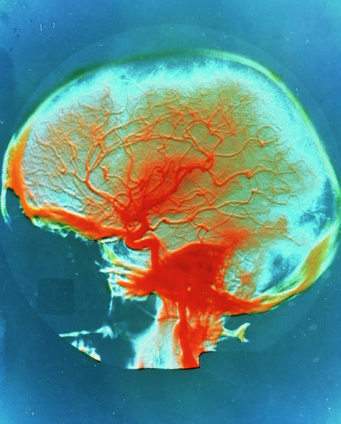 Cerebral Photograph - False-colour Arteriograph Of The Human Head by Alain Pol, Ism/science Photo Library