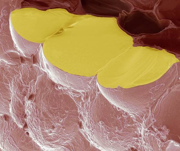 Adipose Tissue Photograph - Fat Cells by Steve Gschmeissner/science Photo Library