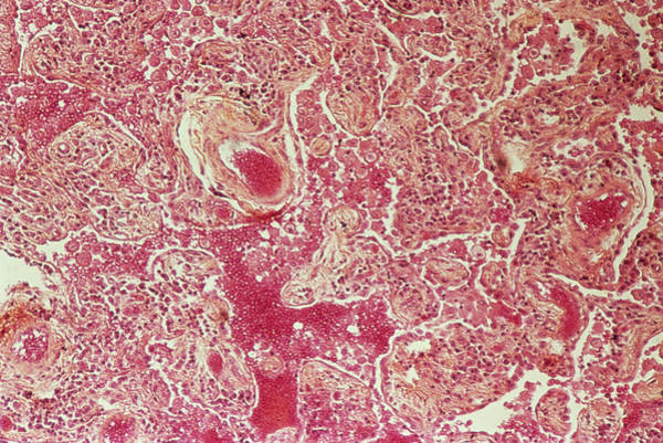 Histology Photograph - Fibrosis In The Lung by Cnri/science Photo Library