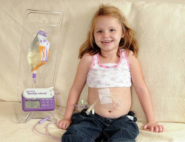 Wall Art - Photograph - Five Year Old Girl Fed By Gastric Tube by Science Photo Library
