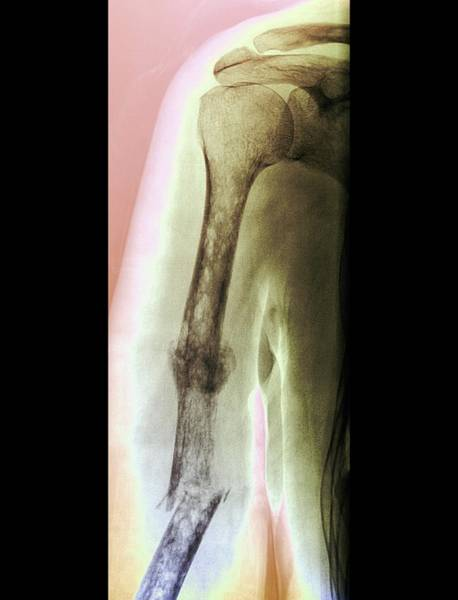 Medical Imaging Photograph - Fractures And Bone Cancer by Zephyr/science Photo Library