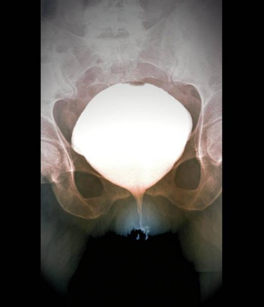 Medical Imaging Photograph - Full Bladder by Zephyr/science Photo Library