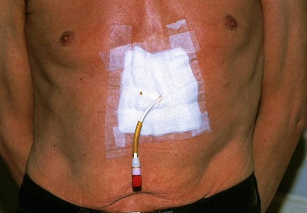 Patient Photograph - Gastrostomy Tube Feeding by Dr P. Marazzi/science Photo Library