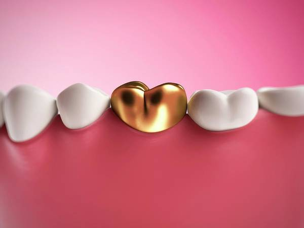 Filling Photograph - Gold Filling In Tooth by Sebastian Kaulitzki