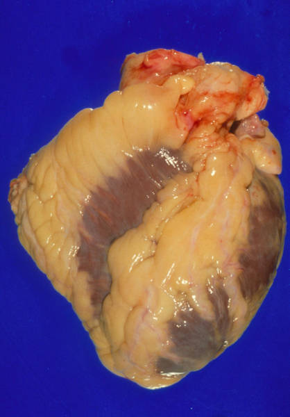 Deposit Wall Art - Photograph - Gross Specimen Of A Healthy Human Heart by Science Photo Library