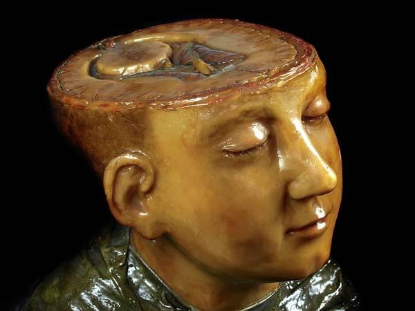 Anatomical Model Photograph - Head And Brain Model by Javier Trueba/msf