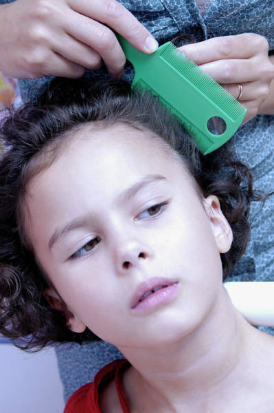 Skin Care Wall Art - Photograph - Head Lice Combing by Aj Photo/science Photo Library