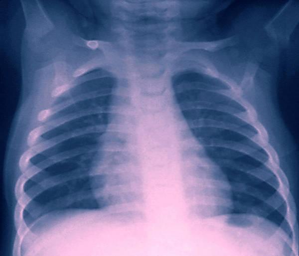 Healthy Chest X-ray Art Print