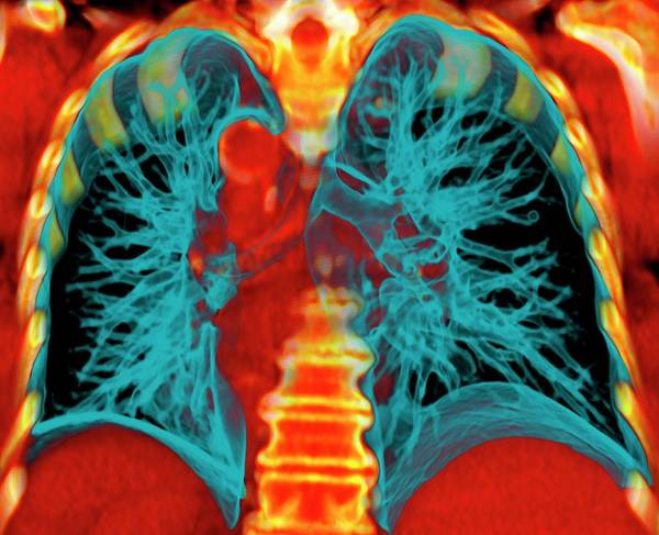 False Ribs Wall Art - Photograph - Healthy Lungs by Du Cane Medical Imaging Ltd