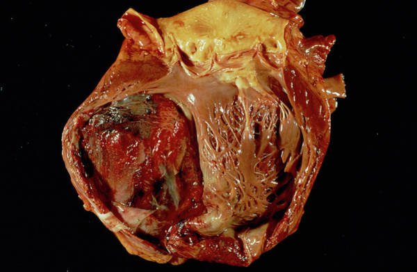 Wall Art - Photograph - Heart After Heart Attack by Cnri/science Photo Library