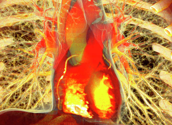 False Ribs Wall Art - Photograph - Heart And Lungs by Antoine Rosset/science Photo Library