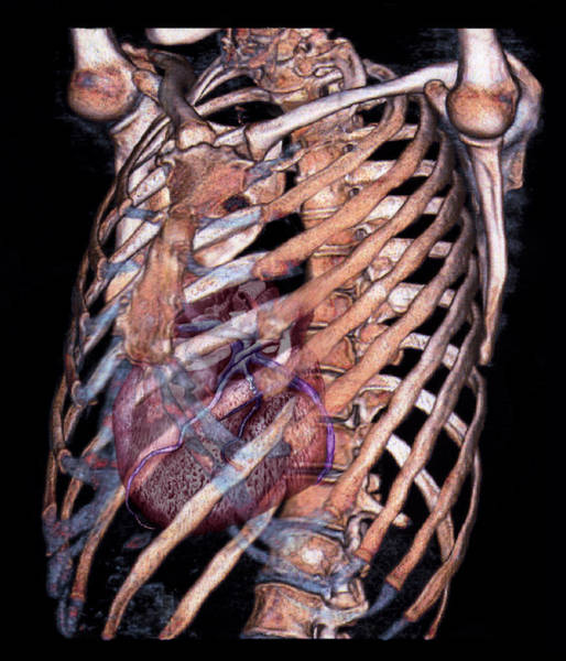 False Ribs Wall Art - Photograph - Heart And Rib Cage by Zephyr/science Photo Library