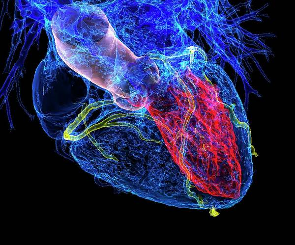 Cardiovascular Disease Wall Art - Photograph - Heart In Coronary Artery Disease by K H Fung/science Photo Library