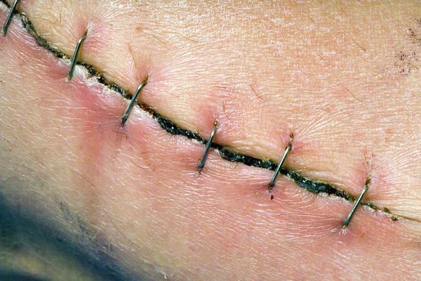 Staples Photograph - Heart Surgery Leg Scar by Paul Rapson/science Photo Library