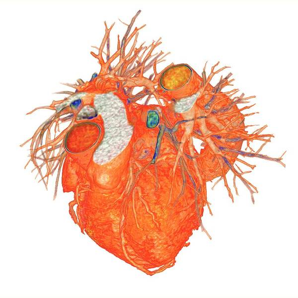 Cardiovascular Disease Wall Art - Photograph - Heart With Coronary Artery Disease by K H Fung/science Photo Library