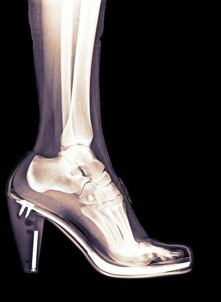 Wall Art - Photograph - High Heel Shoe X-ray by Photostock-israel