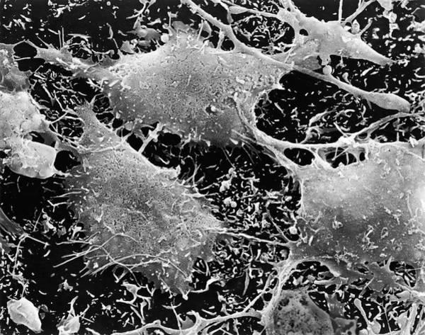 Brain Cancer Wall Art - Photograph - Human Brain Cancer Cells by Dennis Kunkel Microscopy/science Photo Library