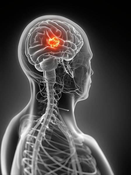 Neoplasm Photograph - Human Brain Tumor by Sebastian Kaulitzki