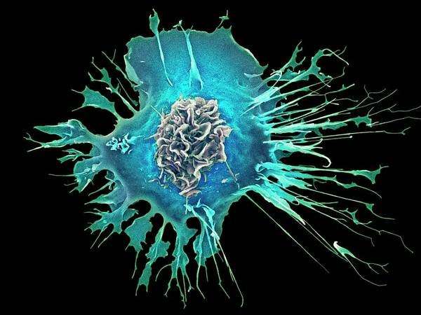 Dendrite Wall Art - Photograph - Human Dendritic Cell by Dennis Kunkel Microscopy/science Photo Library