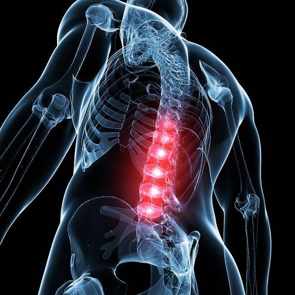 Lumbar Vertebra Photograph - Human Lower Spine by Sebastian Kaulitzki