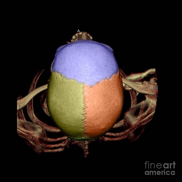 Occipital Bone Photograph - Human Skull by Living Art Enterprises