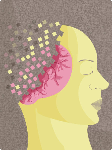 Wall Art - Photograph - Illustration Of Alzheimer's Disease by Fanatic Studio / Science Photo Library