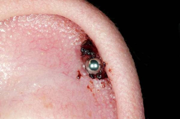 Body Piercing Photograph - Infected Ear Piercing by Dr P. Marazzi/science Photo Library
