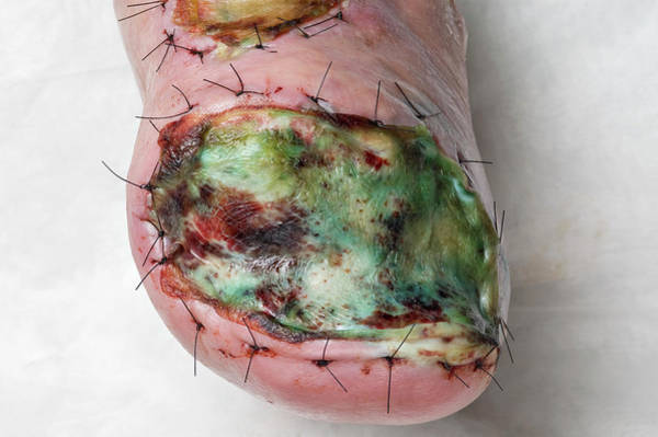 Recent Photograph - Infected Skin Graft by Matt Meadows/science Photo Library