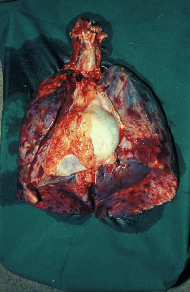 Wall Art - Photograph - Kaposi's Sarcoma Of The Lungs by Dr M.a. Ansary/science Photo Library