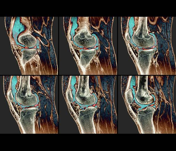 Resonance Wall Art - Photograph - Knee Sprain by Zephyr
