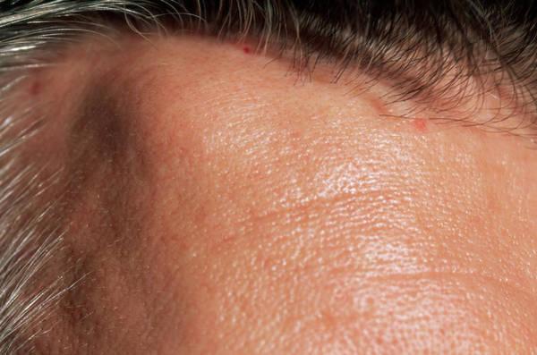 Fatty Tissue Photograph - Lipoma by Dr P. Marazzi/science Photo Library
