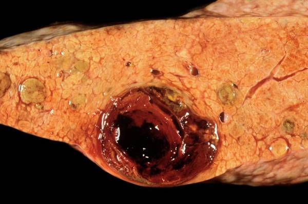 Neoplasm Photograph - Liver Cancer by Cnri