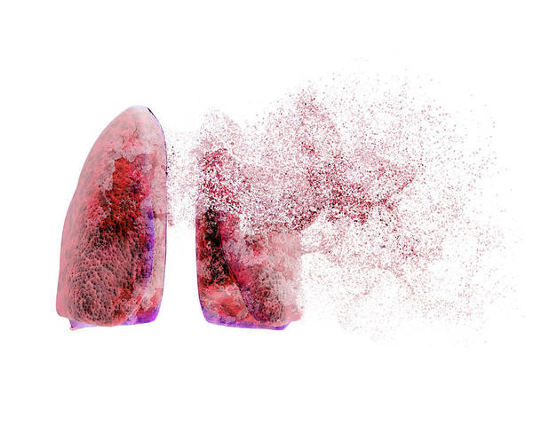Disintegrate Photograph - Lung Disease by Christian Darkin