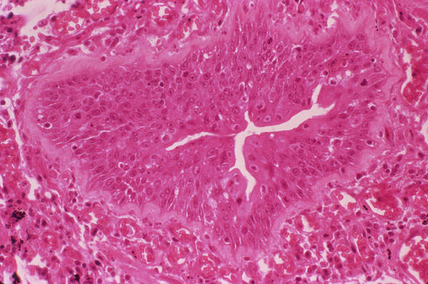 Bronchus Photograph - Lung Metaplasia by Cnri/science Photo Library