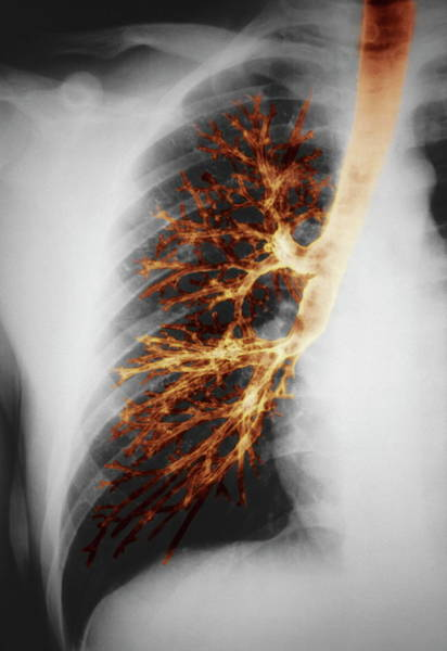 False Ribs Wall Art - Photograph - Lung by Pr. M. Brauner/science Photo Library